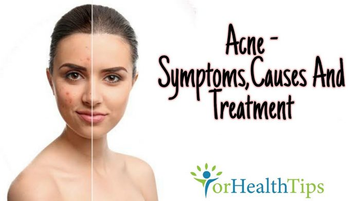 Acne - Symptoms,Causes And Treatment