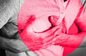 Heart Attack: Early Signs and Symptoms