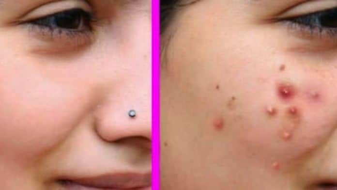 8 Simple Ways To Stop Acnes : Get Rid of Acne Scars In Just 3 Days