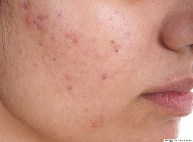 Best Acne Treatment For Young People